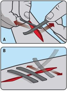 seal wounds with duct tape